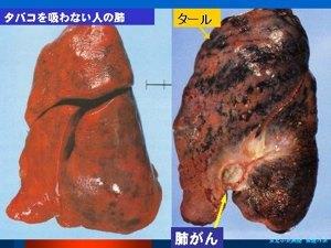 禁煙3.jpg